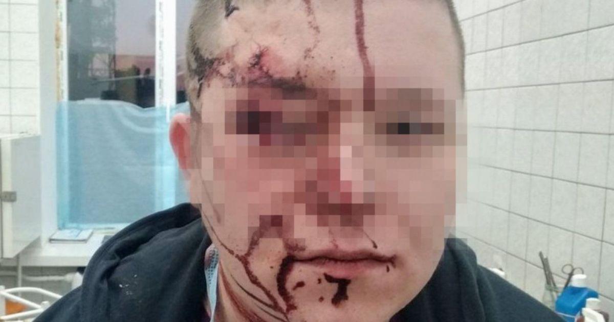 """""""Не понравились стены"""": в киевской больнице пациент ударил врача по голове металлическим стулом"""