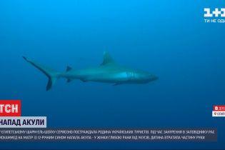 Нападение акулы на украинцев в Египте: женщину перевели в стационар, а мальчик потерял руку