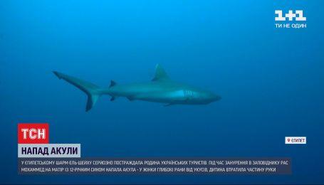 Постраждалу від нападу акули українку перевели до стаціонарного відділення