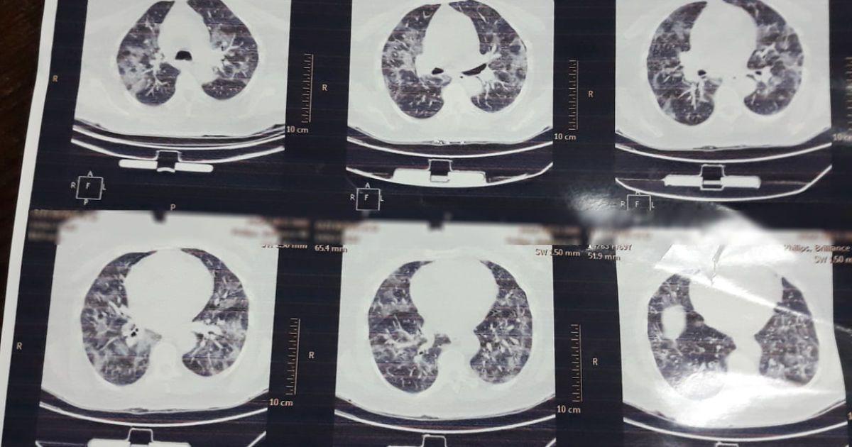 Как выглядят легкие больного с коронавирусом после антибиотиков: врач показал жуткое фото