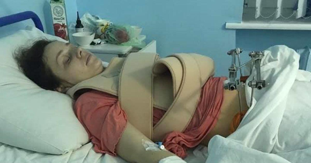 Многочисленные переломы рук и таза: стало известно о еще одной жертве ДТП на остановке в Киеве