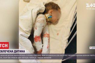 Маленький хлопчик у Дніпрі перекинув на себе каструлю з окропом, його рятують медики