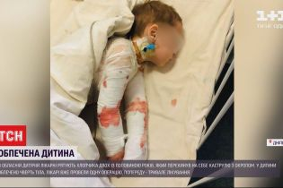 В Днепре медики спасают мальчика, который опрокинул на себя кастрюлю с кипятком