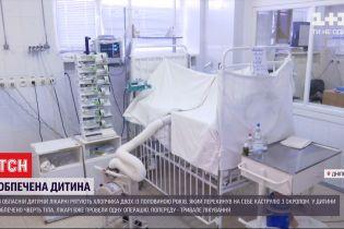 Медики Дніпра рятують маленького хлопчика з тяжкими опіками
