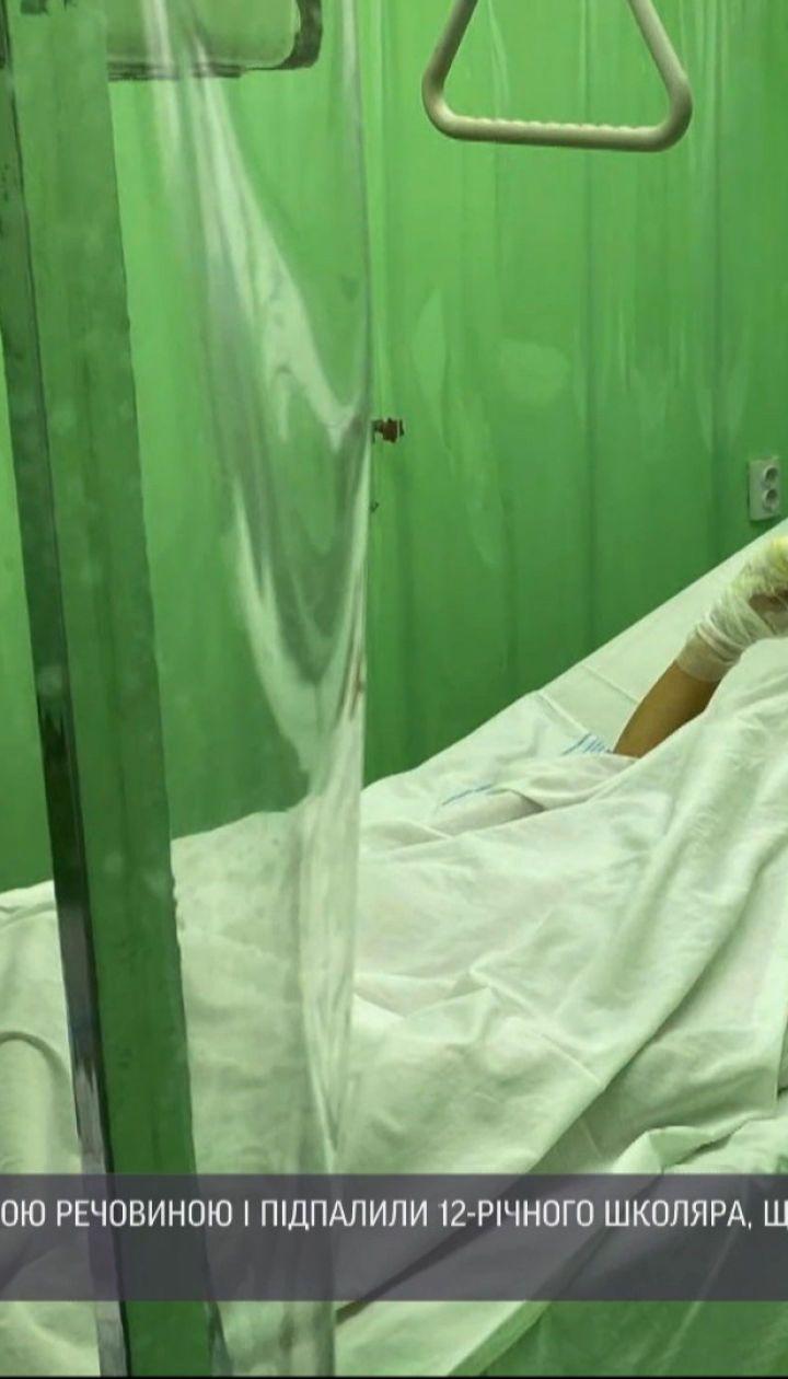 12-летние подростки из Запорожья подожгли сверстника, чтобы снять это на видео