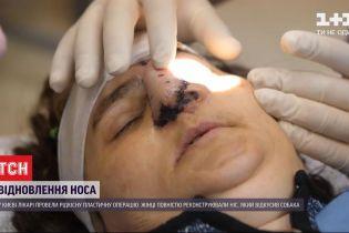 Восстановленный нос: столичные врачи провели редкую пластическую операцию