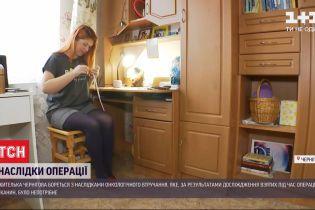 Псевдорак: как жительница Чернигова борется с последствиями ненужной операции
