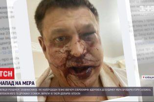 Накануне вечером неизвестные напали на дом мэра Броваров
