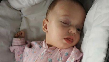 Операції на очах потребує крихітний Іванко: малюк може залишитись сліпим