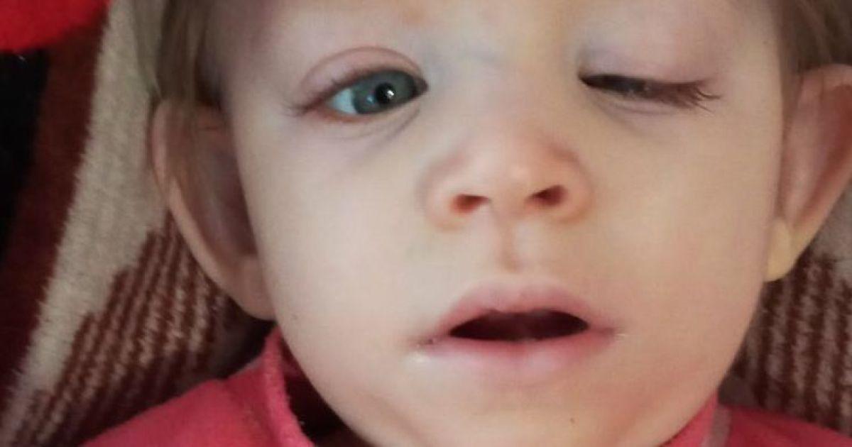 Маленька Єлісавета не впорається зі своєю вадою без допомоги чуйних людей