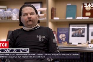 Трансплантація обличчя: американські медики провели унікальну операцію