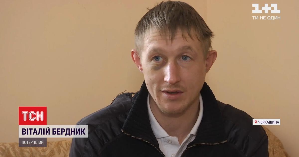 Били трубой и сломали челюсть: пострадавший от пыток полицейских рассказал о пережитом