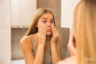 Синяки под глазами: причины появления и способы устранения