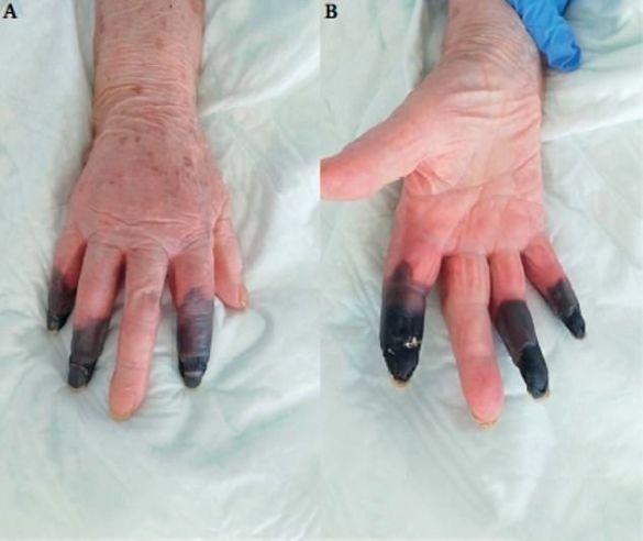 почорнілі пальці