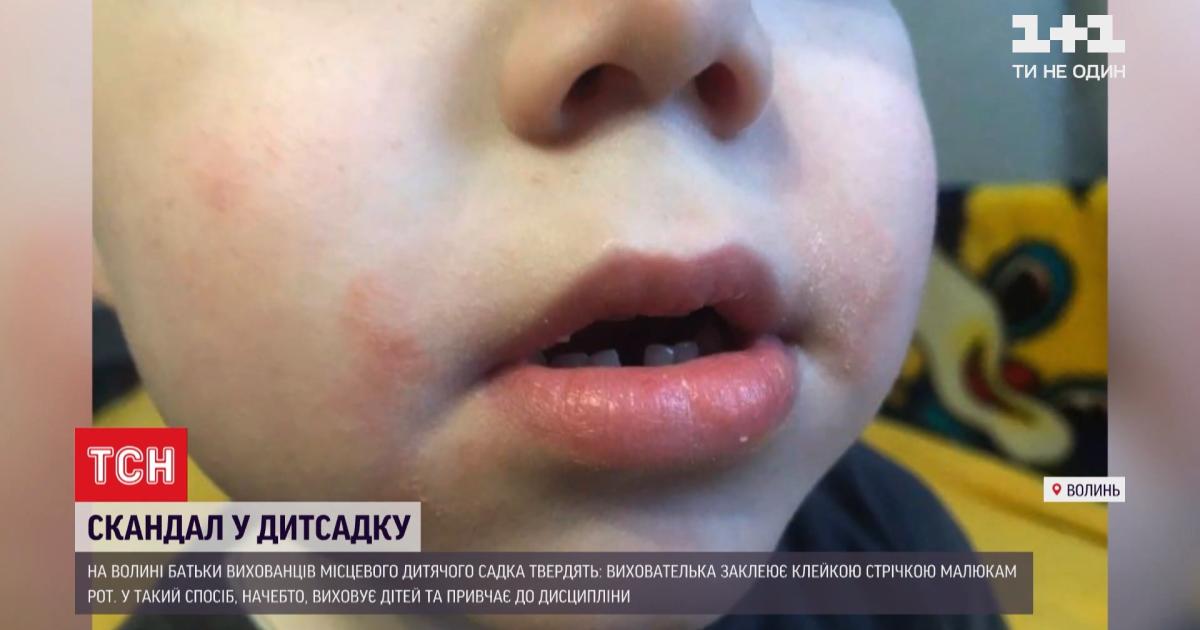 Не клеїла, а лякала: вихователька дитсадка запевняє, що скотчу до дітей не застосовувала