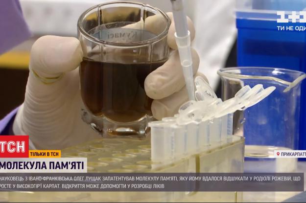 Українець запатентував молекулу пам'яті, яка може допомогти у боротьбі з хворобами Альцгеймера та Паркінсона