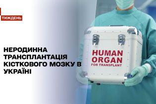 Новини тижня: у чому складність неродинної трансплантації кісткового мозку в Україні