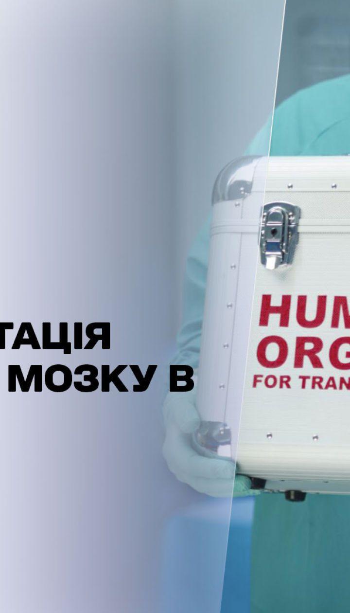 Новости недели: в чем сложность неродственных трансплантаций костного мозга в Украине