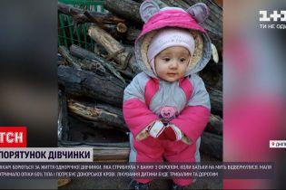 Новини України: у Дніпрі терміново шукають донорів крові для однорічної обпеченої дівчинки