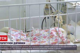 Новости Украины: в Днепре продолжаются поиски доноров крови для девочки с тяжелыми ожогами кожи