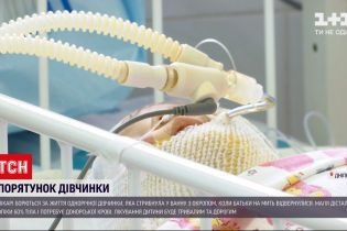 Новини України: для однорічної дівчинки, яка стрибнула у ванну з окропом, шукають донорів крові