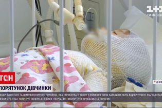 Новини України: для дівчинки, яка отримала 60 % опіків, шукають донорів крові