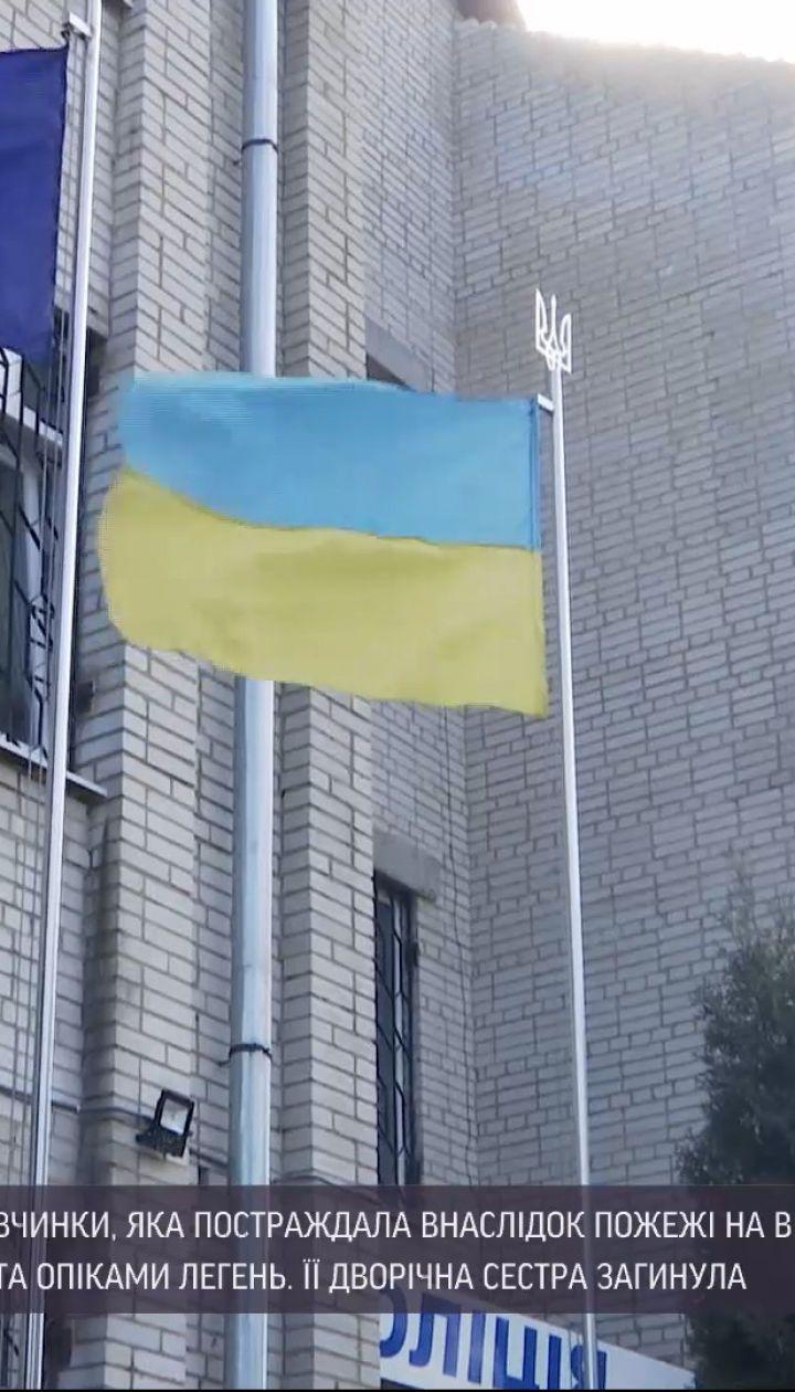 Новини України: дівчинка, яка постраждала від пожежі у Вінницькій області, перебуває у медикаментозній комі