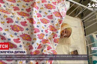 Новости Украины: девочка, которая упала в ванну с кипятком, пришла в себя и начала дышать