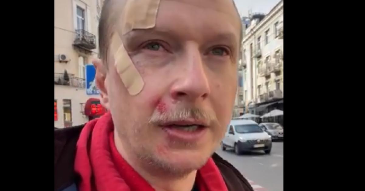 У центрі Києва через зауваження побили відомого ведучого Майкла Щура