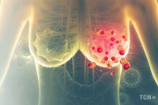 Рак молочної залози: як не пропустити початок хвороби