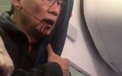 Скандал вокруг авиакомпании United: пассажира-азиата силой вытащили из самолета, разбив губу