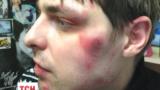 Через побиття водія на Бориспільській трасі довкола «Айдару» розгорається скандал