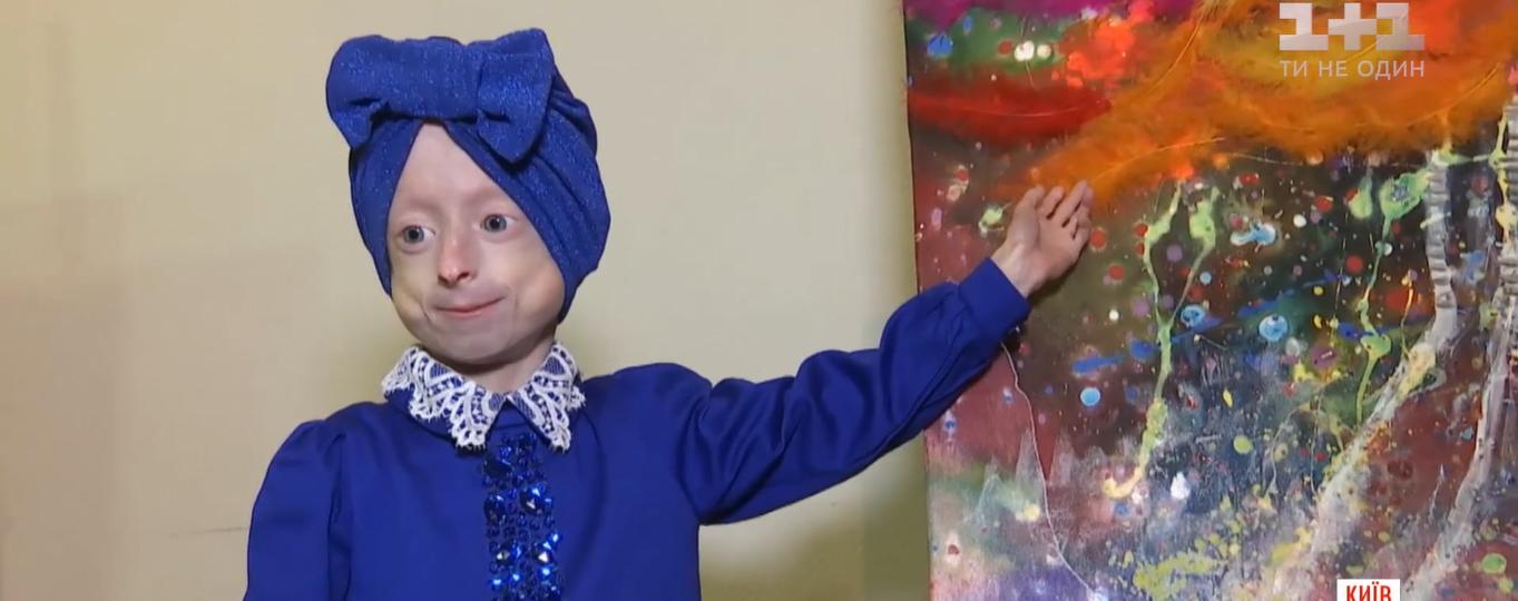 """""""Їїсердечко зупинилося"""": померла маленька Іринка Химич, яка мала рідкісну хворобу з синдромом передчасного старіння"""