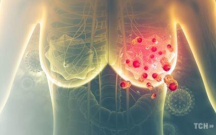 Рак молочной железы: как не пропустить начало болезни