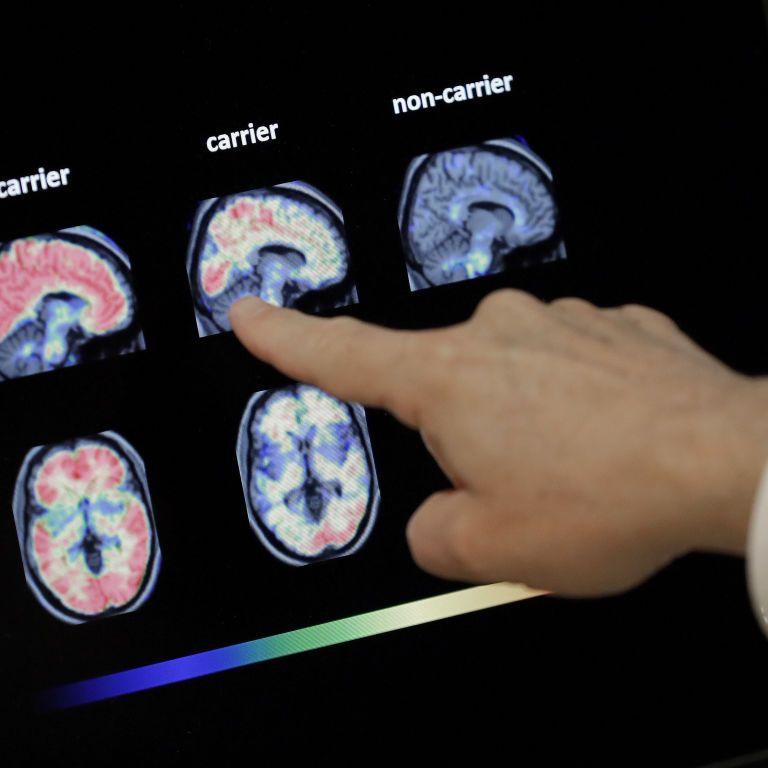 В США одобрили препарат для борьбы с болезнью Альцгеймера