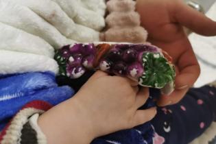 У Львові півторарічна дівчинка запхала пальці у сільничку: її рятували хірурги