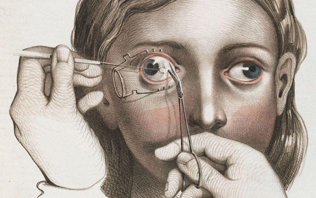 Хирургия 19-го века. / © thamesandhudson.com