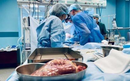 В Украине впервые провели трансплантацию сердца ребенку