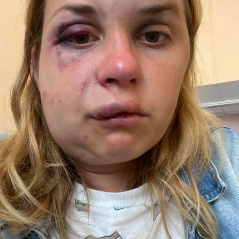 """У поїзді """"Маріуполь-Київ"""" чоловік у трусах напав на жінку з дитиною і намагався зґвалтувати"""