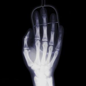 """""""Губка Боб"""", телефон та банка з-під кави: найдивніші предмети, які знаходили у людях за допомогою рентгену"""