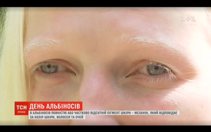 Поціловані Богом люди: як живеться альбіносам в Україні