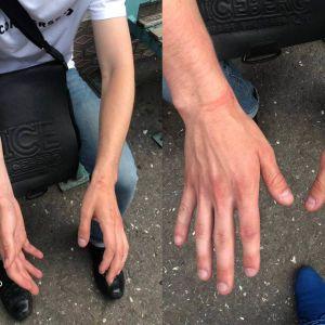 В Одесской области патрульный побил подростка и сломал ему нос