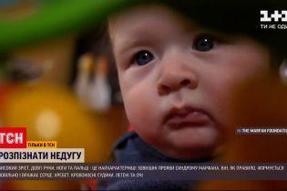 Новини України: як вчасно виявити синдром Марфана