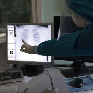 Що краще для діагностики пневмонії — УЗД чи рентген: пояснення лікарки