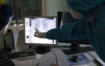 Может ли пневмония в случае коронавируса протекать без температуры: ответ врача