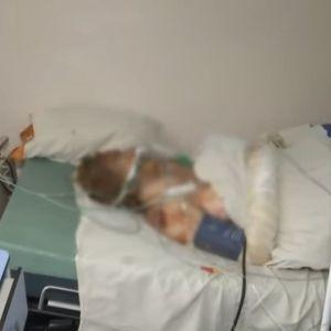 У Хмельницькому померла 33-річна жінка, яку брат намагався спалити живцем