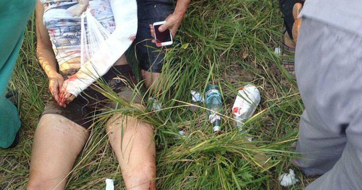 Внаслідок ДТП постраждала родина фотокореспондента / © LB.ua