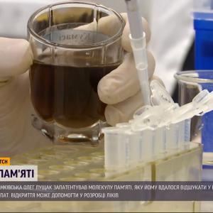 Украинец запатентовал молекулу памяти, которая может помочь в борьбе с болезнями Альцгеймера и Паркинсона