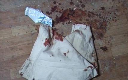 У Києві в гуртожитку стався вибух: один загинув і двоє тяжкопоранених