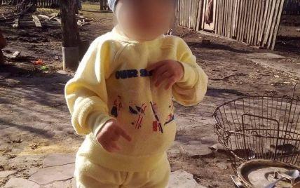 Чуда не случилось: в Днепре умер 2-летний мальчик, которого ножом порезал отчим
